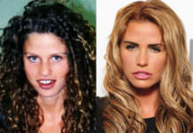 celebs with plastic surgery