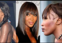 female celebs hair transplants