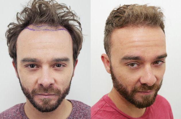 Jack Shepherd hair transplant